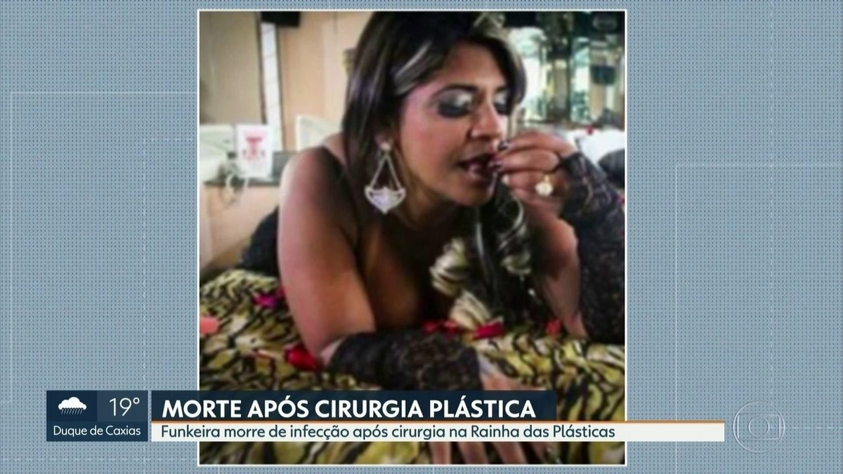 Dona de clínica onde MC Atrevida fez procedimento ... ▷ MC ...